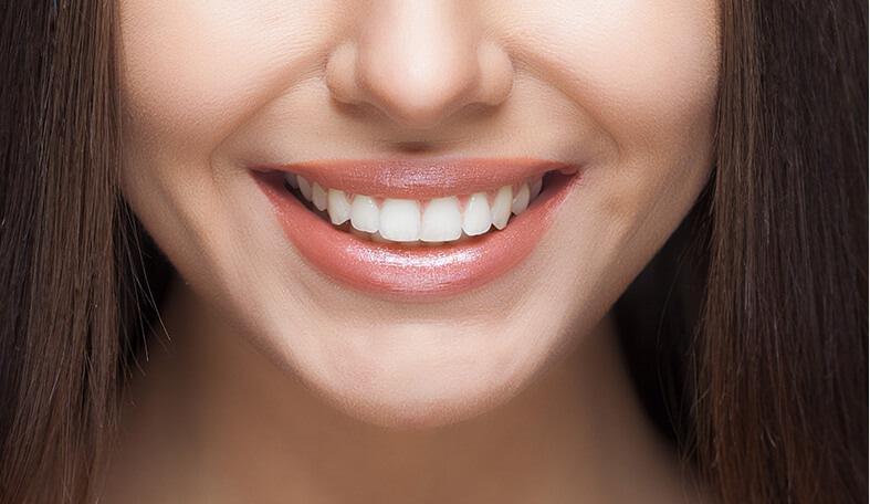 a womans white smile