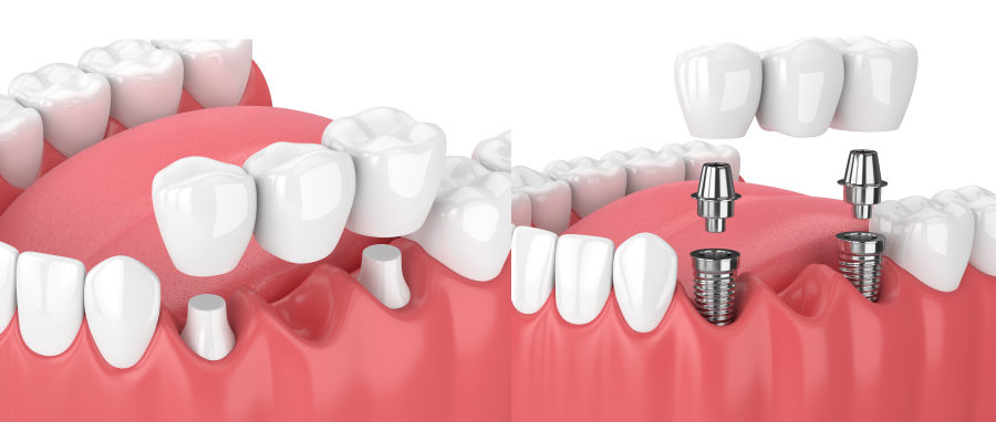Side by side comparison of a bridge on natural teeth vs. an implant-supported bridge to replace missing teeth