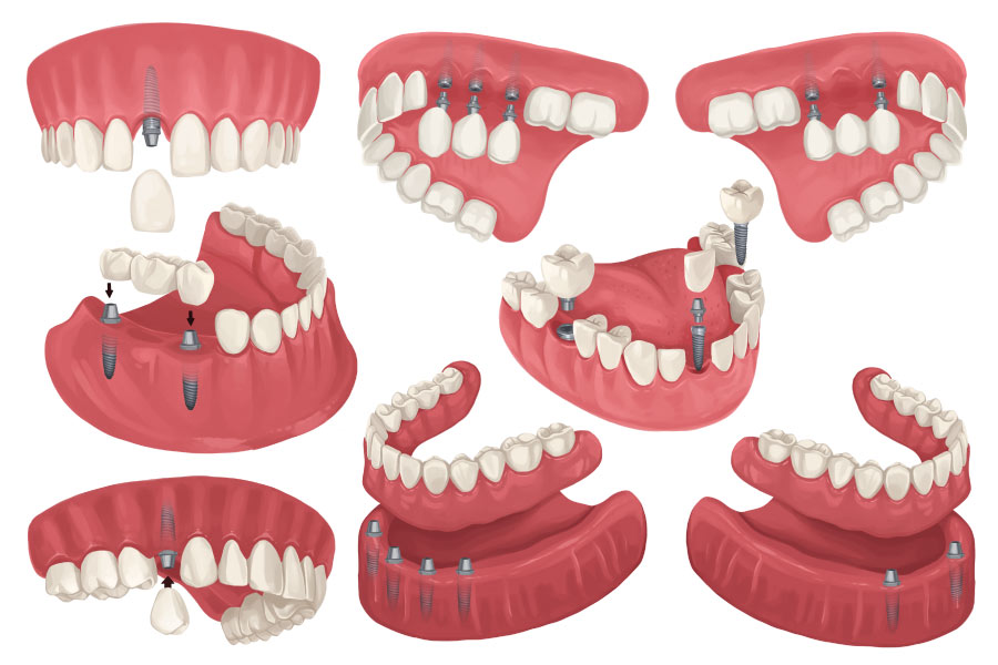 Collection of drawings depicting different configurations of dental implants in a patient's mouth in Westerville, OH