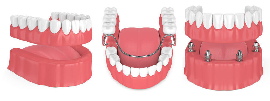 3 types of dentures: partial dentures, removable full dentures, and implant-supported dentures