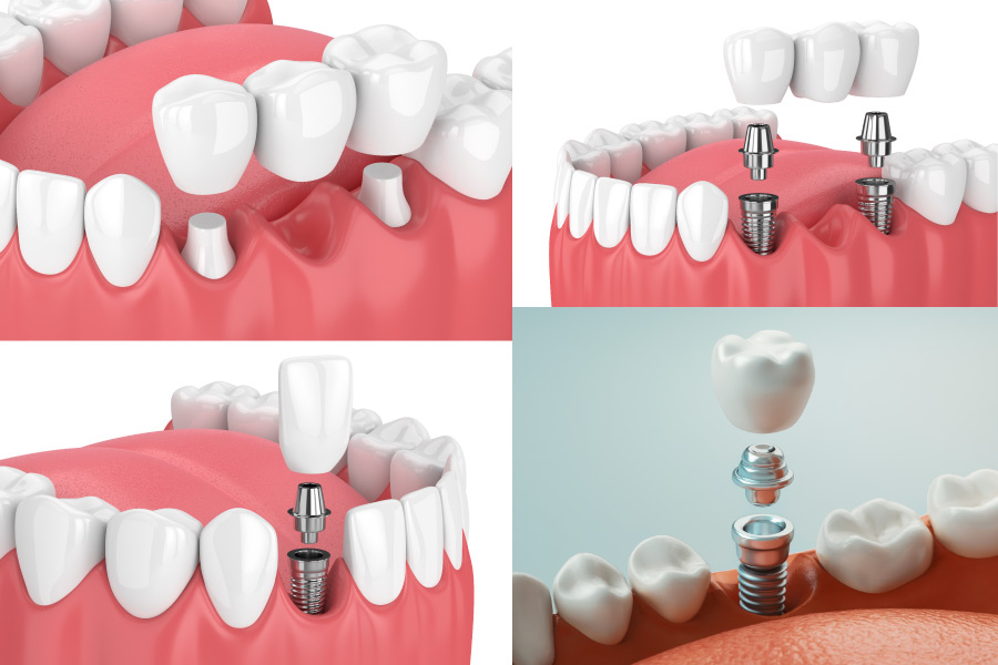 4 images showing dental implants and bridges to replace teeth