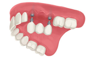 Implant-supported dental bridge to replace missing teeth