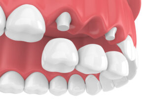 tooth-supported fixed bridge to replace a missing tooth